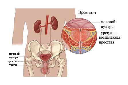 Клизмы от рака простаты